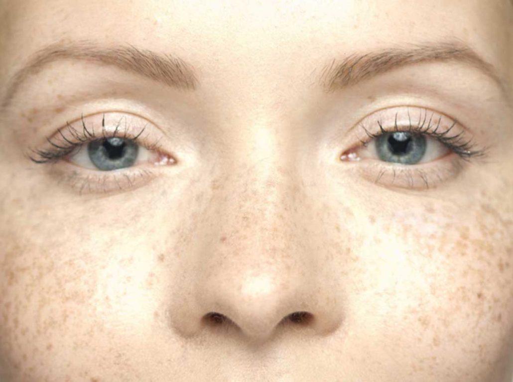 La decolorazione significa per pelle di zone intime